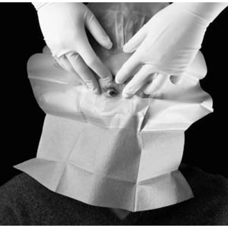 """Small Drape with Adhesive Aperture & Pouch 15"""" x 19"""" 2 Adhesive Patches Fluid Collection Pouch"""